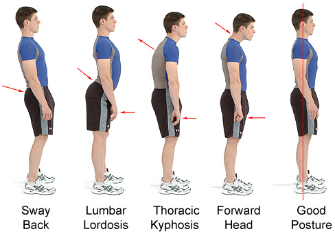 good and bad postures
